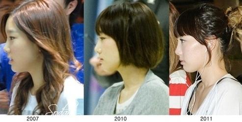 Fans Dispute Girls Generation Taeyeon S Plastic Surgery