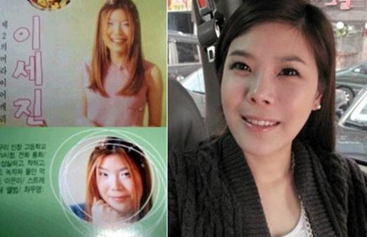 pre-plastic surgery